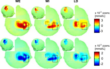 Near-Infrared Spectroscopy TopographyConcentration changes of oxygenated ...