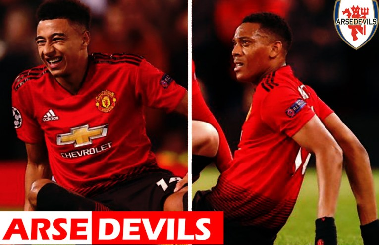 Lingard, Martial injury, lingard injury, United Vs PSG