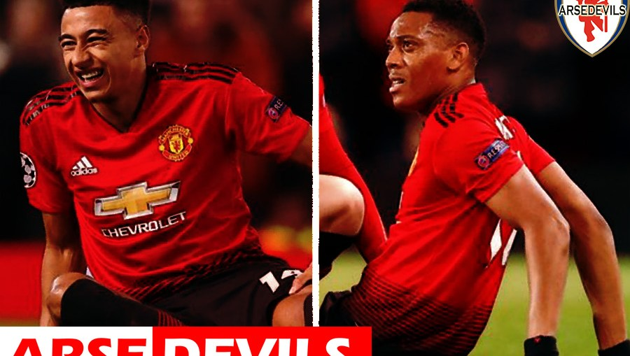 Lingard, Martial injury, lingard injury, United Vs PSG