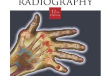Clark's Positioning in Radiography 12th Edition PDF