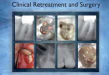 Advanced Endodontics Clinical Retreatment and Surgery PDF