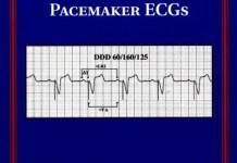 Simplified Interpretation of Pacemaker ECGs PDF