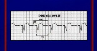 Simplified Interpretation of Pacemaker ECGs PDF