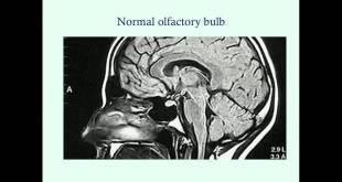 Kallmann's Syndrome