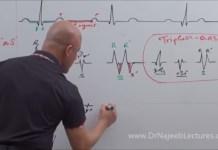Mastering ECG - QRS Complex - Nomenclature