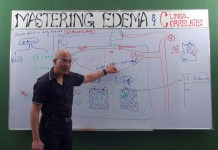 What is Edema? Teaser video