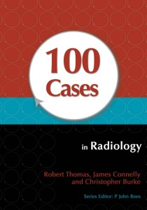 100 Cases in Radiology PDF