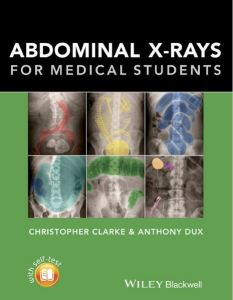 Abdominal X-Rays for Medical Students 1st Edition PDF