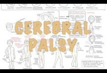 Cerebral Palsy - (DETAILED) Overview