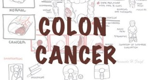 Colorectal Cancer - Overview