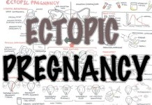 Ectopic Pregnancy - (DETAILED) Overview