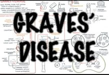 Graves Disease (DETAILED) - Overview