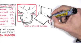 Introduction to Direct and Indirect Inguinal Hernia