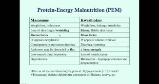 Undernutrition - Medical Review Series