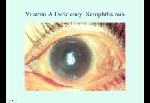 Vitamin A - Medical Review Series