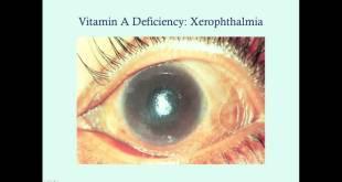 Vitamin A - Medical Review Series