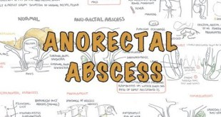 Anorectal Abscess (General Surgery) - Overview