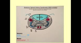 Anterior Spinal Artery Syndrome - Medical Review Series