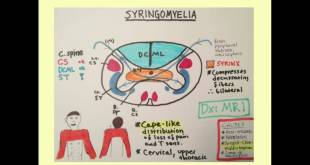 Syringomyelia - Medical Review Series