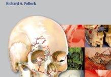 Craniomaxillofacial Buttresses PDF – Anatomy and Operative Repair
