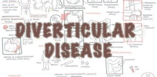 Diverticular Disease - Overview