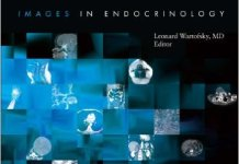 Diagnostic Dilemmas 2nd Edition PDF – Images In Endocrinology