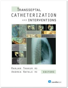Transseptal Catheterization and Interventions PDF