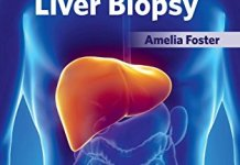 Methods and Results of Liver Biopsy PDF