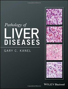 Pathology of Liver Diseases PDF