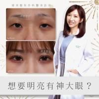 雙眼皮手術_陳心瑜醫師