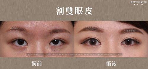璞美整形外科割雙眼皮手術推薦醫師