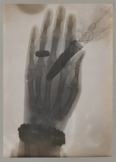 X-ray of a hand holding a feather duster from Walter König's 14 Photographien mit Röntgen-Strahlen, 1896