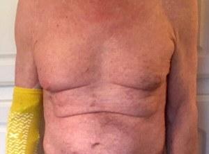 surgery recovery - rash from Vancomycin