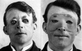 Walter Yeo, uma das primeiras pessoas a passar por um transplante de pele e cirurgia plástica avançada em 1917.