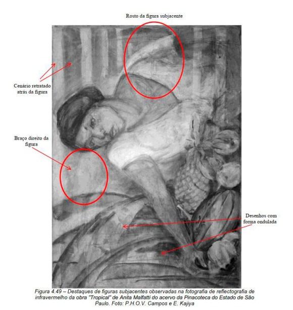 Anita Malfatti radiografia