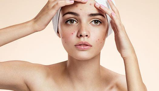 Acne - Symptoms, Causes and Treatment