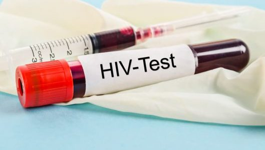 AIDS - symptoms, causes and treatment