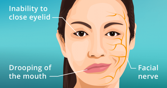 Facial palsy (bell's palsy) - symptoms, causes and treatment