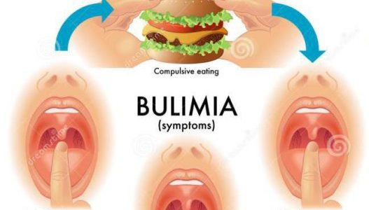 Bulimia - symptoms, causes and treatment