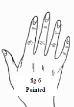 The Pointed Hand.