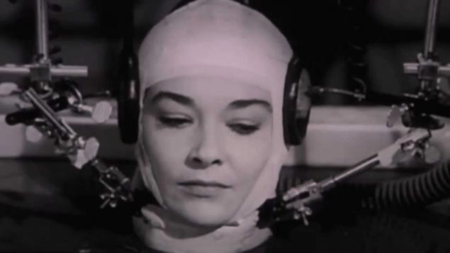 Head Transplants?