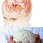 Cara Mencegah Penyakit Tumor dan Kanker 1