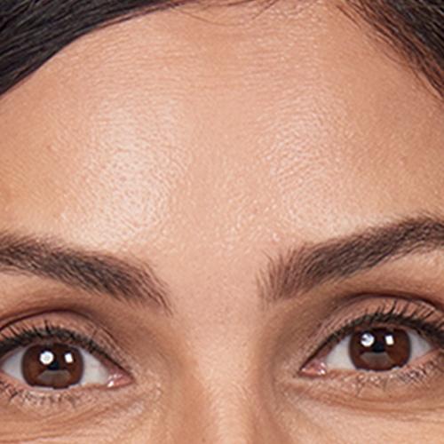 artistik-beauty-botox-cosmetic dermatology