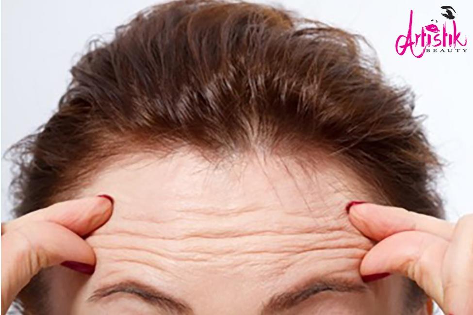 Cosmetic Botox