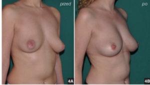 Przeszczep tkanki tłuszczowej Lubomi Lembas