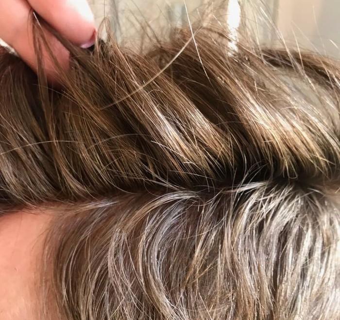 co na wypadanie włosów androgenowe