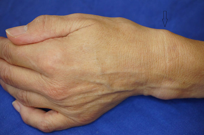 Тендовагинит лечение мазь. Тендовагинит предплечья: симптомы, разновидности, диагностика и методы лечения