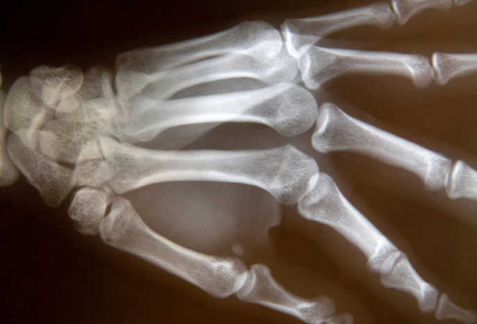 Остеопения причины патологии признаки диагностика и лечение