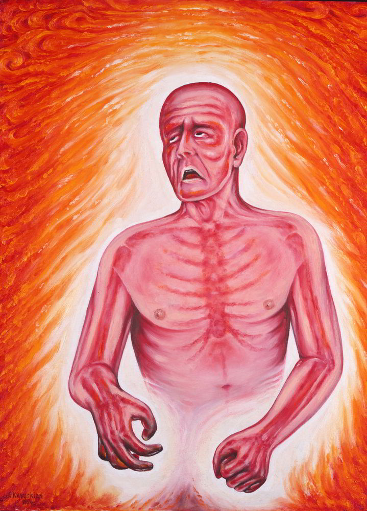 Fever by Jack Kevorkian-American Painting