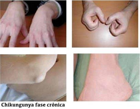 chikungunya-o-proximo-desafio-19-638